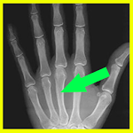 Radiografia  Radio X